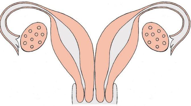 Дворога матка: вагітність і пологи
