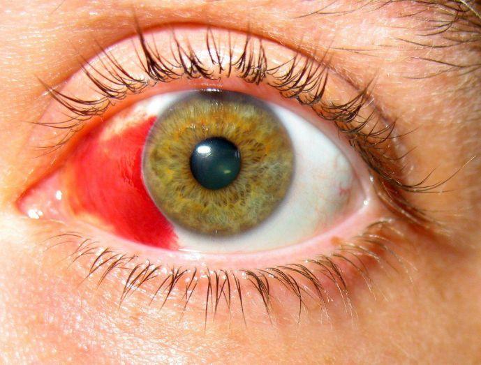 Опіки очей кварцовою лампою