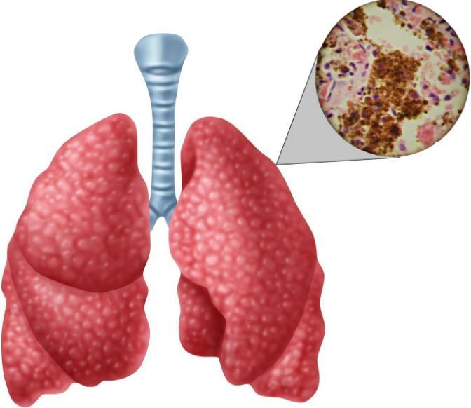 Туберкульоз - лікування хвороби
