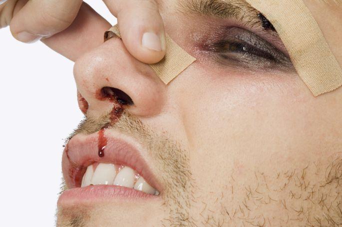 Як виглядає перелом носа