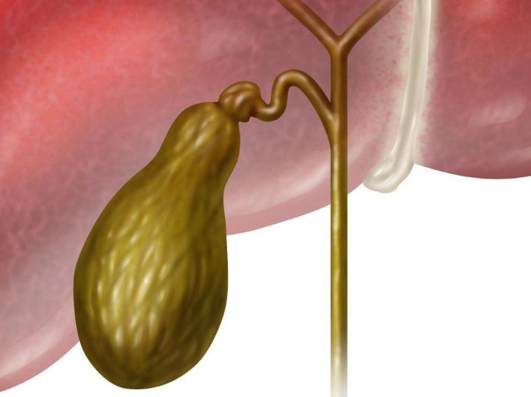 Кіста жовчного міхура: симптоми