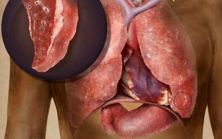 Кавернозний і фіброзно-кавернозний туберкульоз