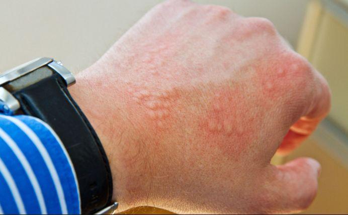 Алергія на метал