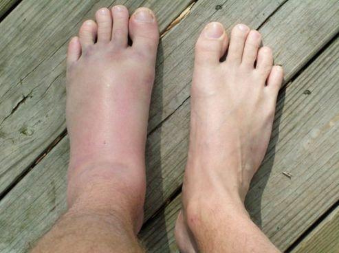 Вивих стопи - причини, симптоми