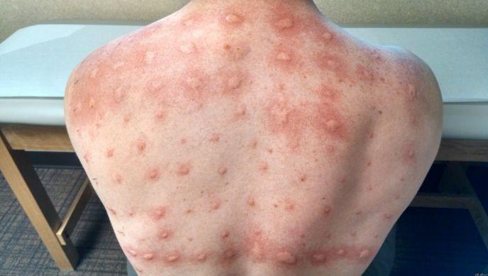 Алергія на цитрусові