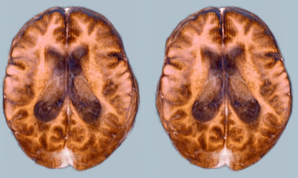 КТ і МРТ головного мозку при пухлині