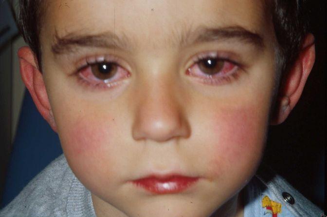 Алергія на лимон: ознаки та симптоми