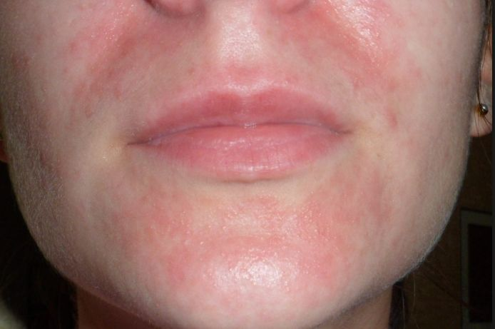 Дієта при алергії на цитрусові