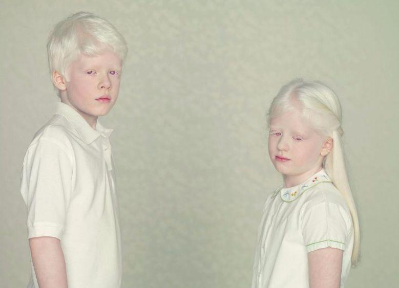 Що таке альбінізм?