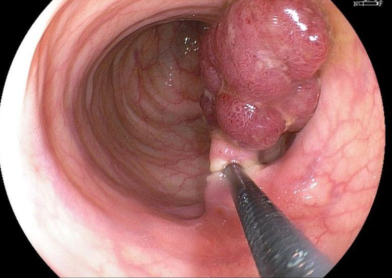 Поліп в шлунку - видаляти чи ні?