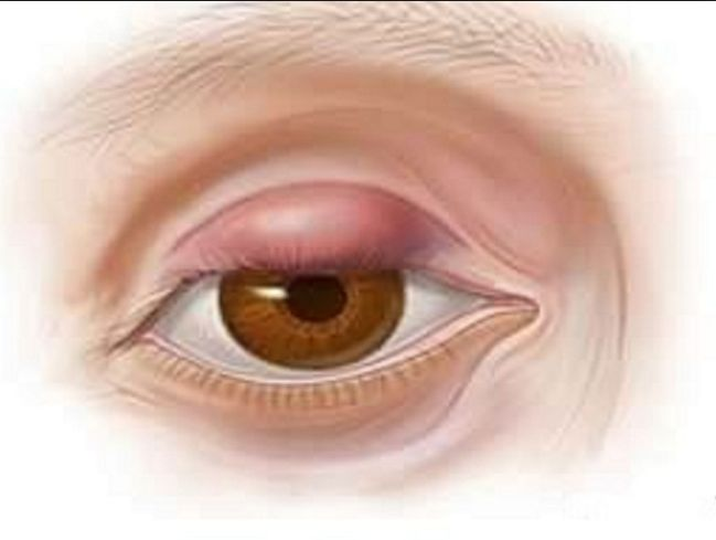 Що собою являє ячмінь на оці?