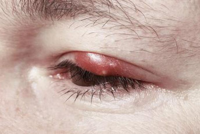 Як зцілити ячмінь на оці