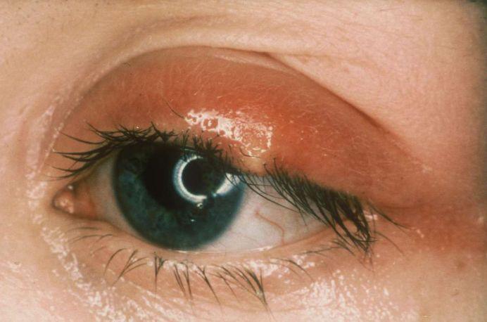Як запобігти ячмінь на оці