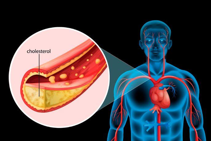 Лікування стенокардії