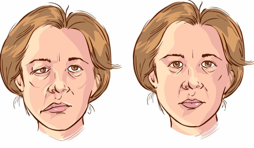 Неврит лицьового нерва - симптоми