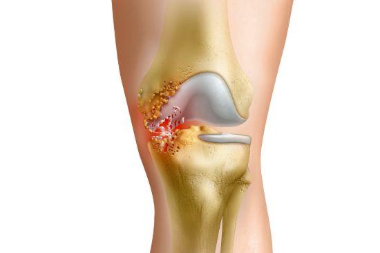Що таке гнійний артрит колінного суглоба