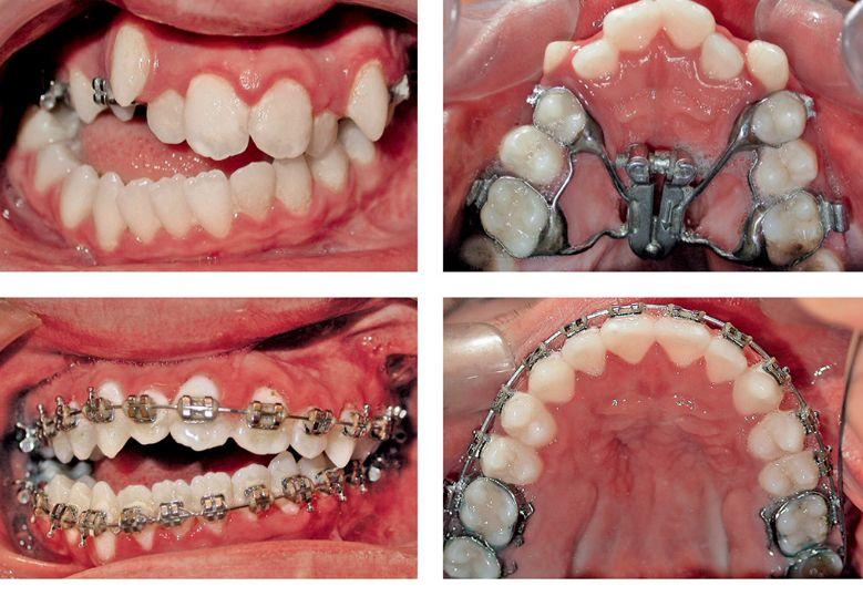 Підрізання вуздечки язика і губи у дітей