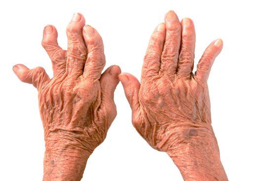 Лікування артриту суглобів пальців