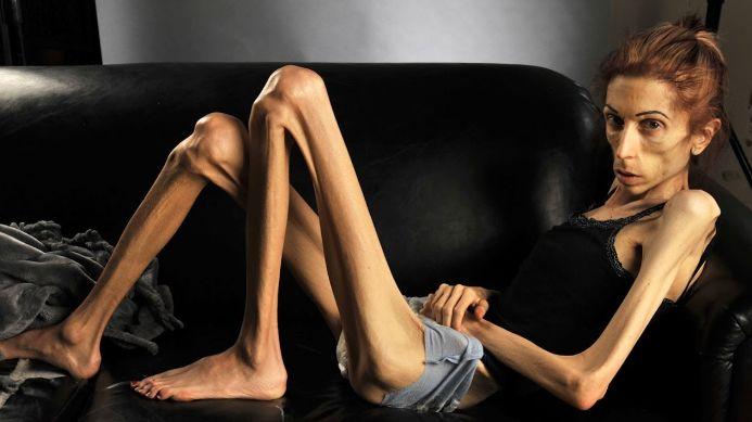 Анорексія - лікування хвороби