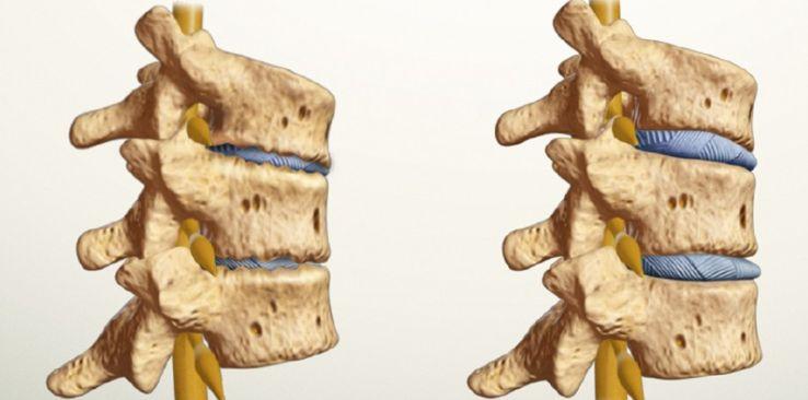 Спондильоз грудного відділу хребта