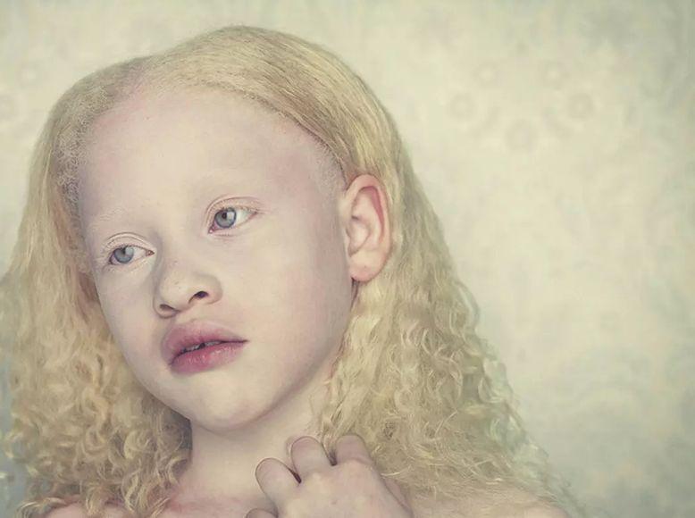 Звідки беруться діти-альбіноси
