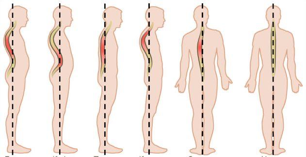 Як лікувати викривлення хребта у дорослих