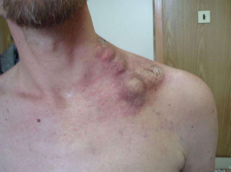 Лейкоз - ознаки, симптоми і лікування