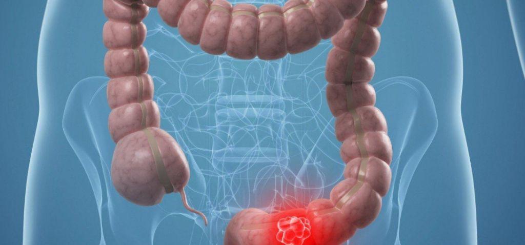 Діагностика амебіазу і форми передачі інфекції