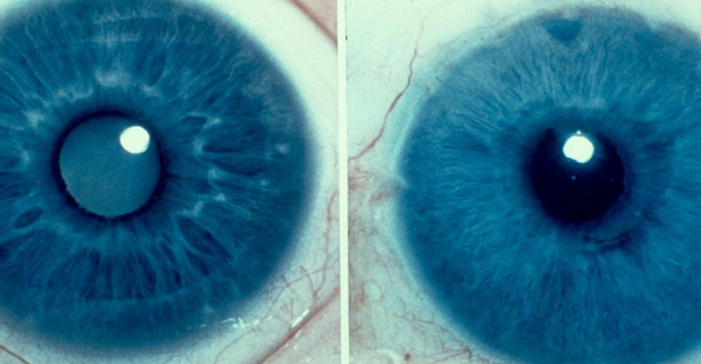 Видалення катаракти без госпіталізації