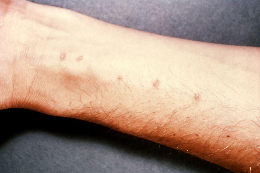 Причини гемобластозов