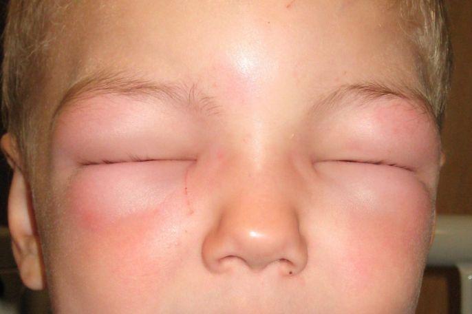 Як швидко розпізнати симптоми анафілактичного шоку