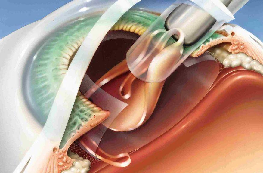 Лікування катаракти з допомогою лазера
