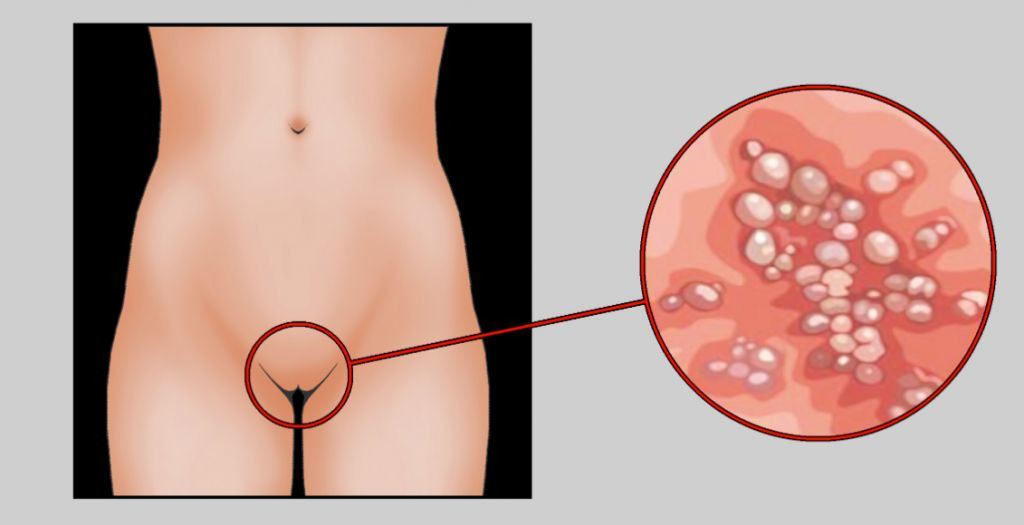 Симптоми сифілісу у жінок