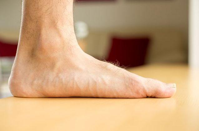 Лікування плоскостопості