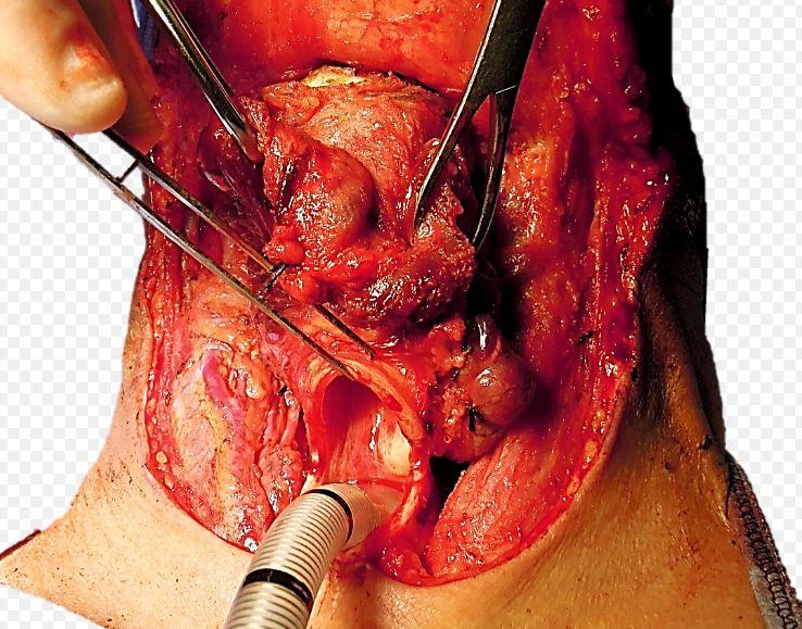 Клінічний випадок злоякісної обструкції трахеї