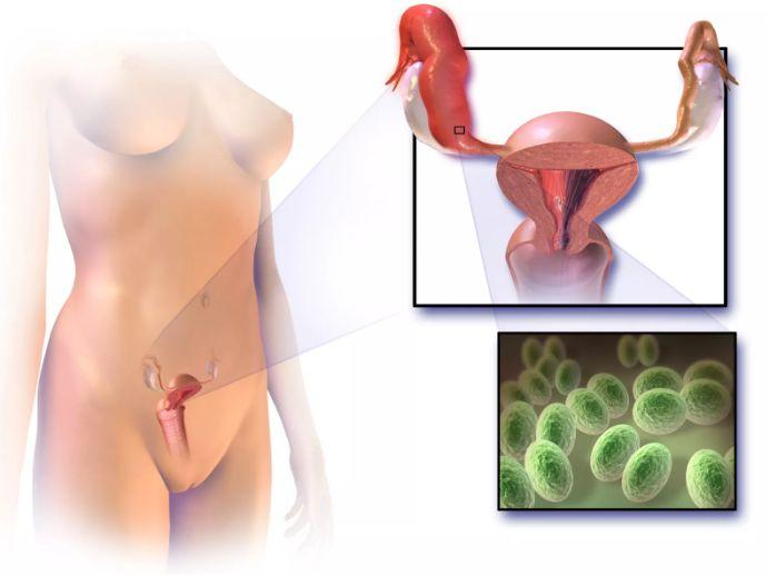 Патогенез апоплексії яєчника