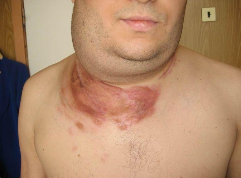Лімфома - симптоми, стадії, лікування
