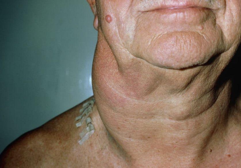 Т клітинна лімфома шкіри або грибоподібний мікоз