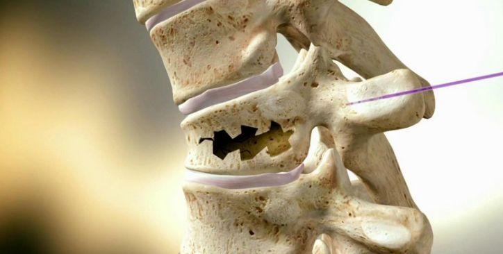 Компресійний перелом хребта