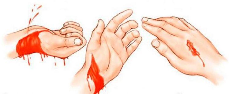 Зовнішня кровотеча - це що