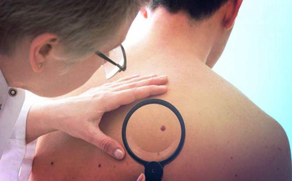 Не просто пляма: що потрібно знати про меланоми