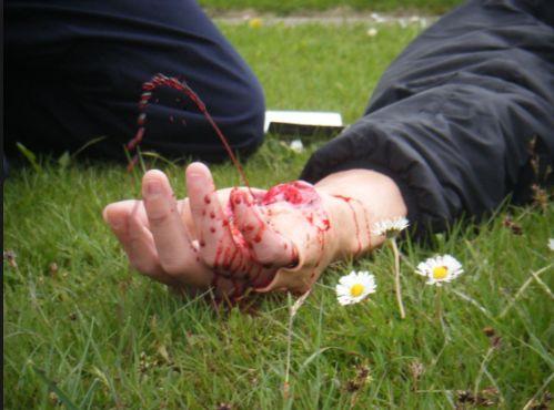 Як зупинити кровотечу