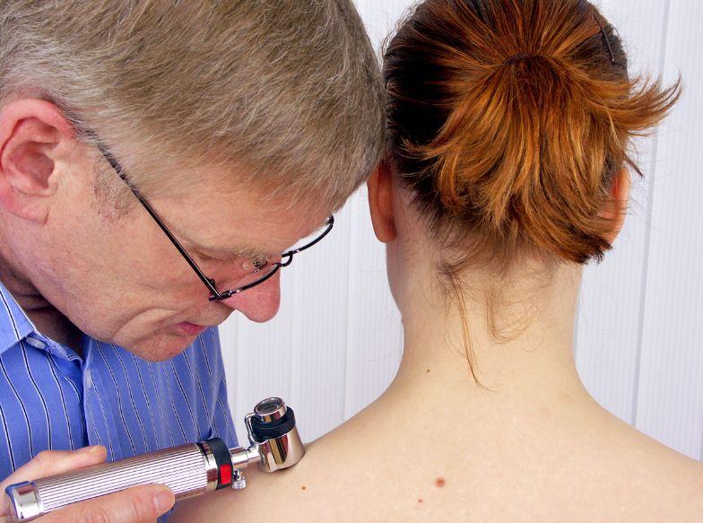 Меланома – злоякісна пухлина шкіри