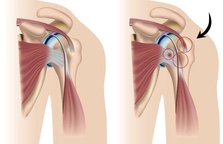 Защемлення плечового суглоба: симптоми
