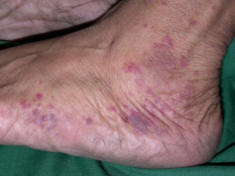 Хвороба Шамберга: причини, діагностика