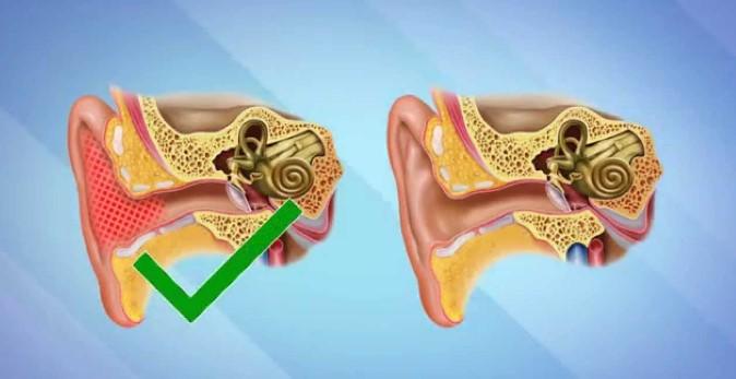 Сірчана пробка у вусі - симптоми