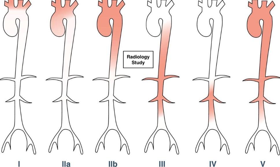 Анатомічна класифікація артериита Такаясу