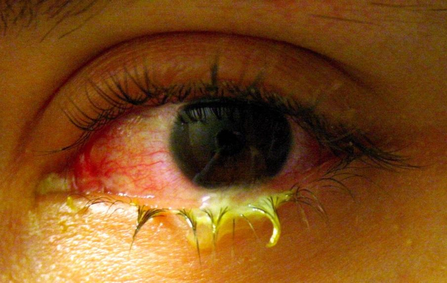 Кон'юнктивіт: лікування, симптоми, причини