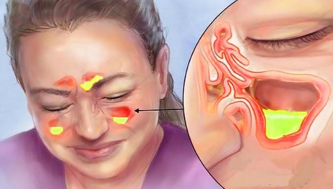 Гострий гайморит, симптоми