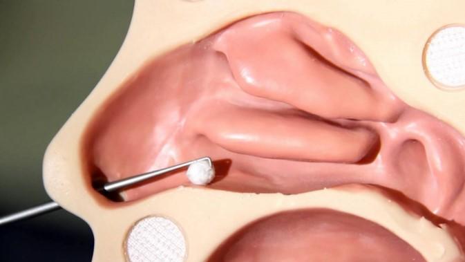 Видалення чужорідного тіла з носа